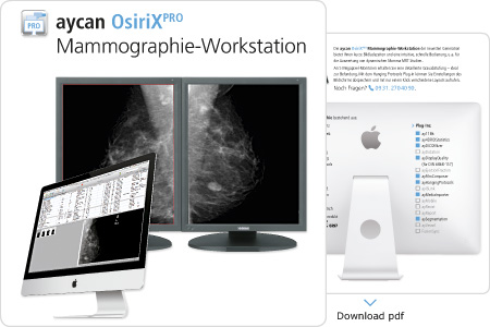Mammographie-Workstation Download PDF