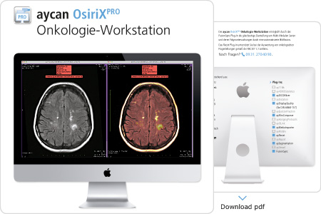 aycan workstation für Onkologie