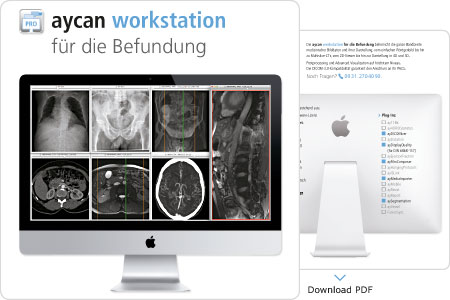 Download PDF – aycan workstation für die Befundung