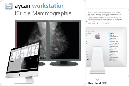 Download PDF – aycan workstation für die Mammographie