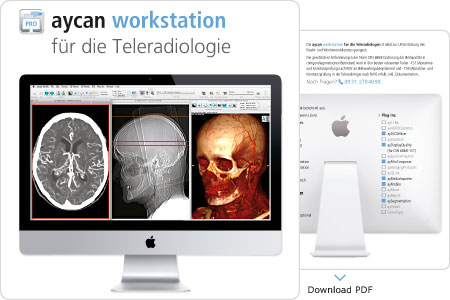 Download PDF – aycan workstation für die Teleradiologie